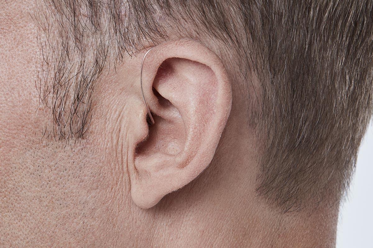 miniRITE (Receiver in the Ear)